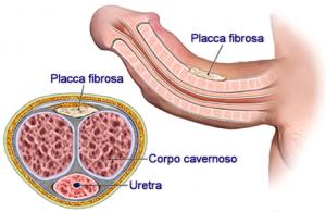 Induratio Penis Plastica (IPP)
